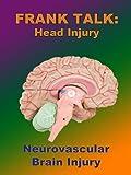 Frank Talk:  Neurovascular Brain Injury