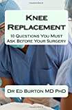 Knee Replacement: 10 Questions You Must Ask Before Your Surgery
