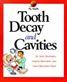 Tooth Decay & Cavities (My Health)