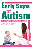 Early Signs of Autism in Toddlers, Infants and Babies: Diagnosis and Treatment Options
