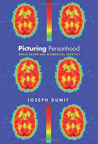 Picturing Personhood: Brain Scans and Biomedical Identity (In-Formation), by Joseph Dumit