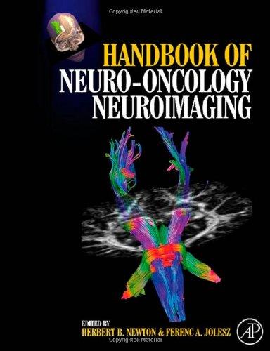Handbook Of Neuro-Oncology Neuroimaging