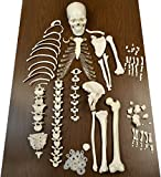 "Disarticulated Human Skeleton, Half, Medical Quality, Life Sized (62"" Model Height) - 23 Intevertebral Discs, 3 Part Skull with Moveable Jaw"