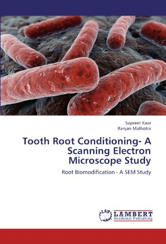 Tooth Root Conditioning- A Scanning Electron Microscope Study: Root Biomodification - A Sem Study