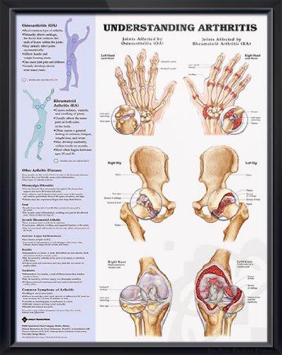 Understanding Arthritis, DeuPair 20x26
