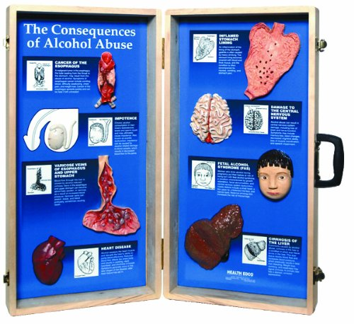 HEALTH EDCO W43053 The Consequences of Alcohol Abuse 3D Display, 27
