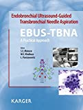 img - for Endobronchial Ultrasound-Guided Transbronchial Needle Aspiration (EBUS-TBNA): A Practical Approach book / textbook / text book