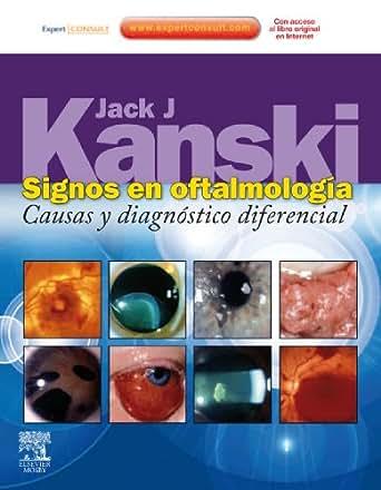 Signos en oftalmología + ExpertConsult: Causas y diagnóstico