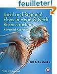 Local and Regional Flaps in Head & Ne...