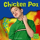 Chicken Pox (First Facts) (0736842888) by Glaser