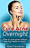 Cure Acne Overnight: How To Cure Acne Without Leaving Marks Or Scars (Acne Cure, Clear Skin, Acne Remedy, Acne Solution, Pimple Cure, Pimples, Acne, Remedies, Cures,)