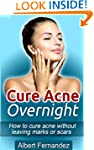 Cure Acne Overnight: How To Cure Acne...