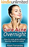 Cure Acne Overnight: How To Cure Acne Without Leaving Marks Or Scars (Acne Cure, Clear Skin, Acne Remedy, Acne Solution, Pimple Cure, Pimples, Acne, Remedies, Cures,) (English Edition)