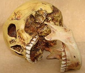 Anatomie Schädel mit Unterkiefer von Markus Mayer