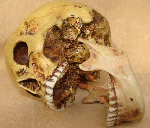 Markus Mayer - Teschio anatomico con mascella inferiore