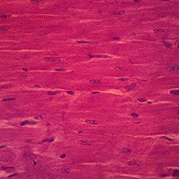 Mammal Intercalated Discs, sec., Microscope Slide