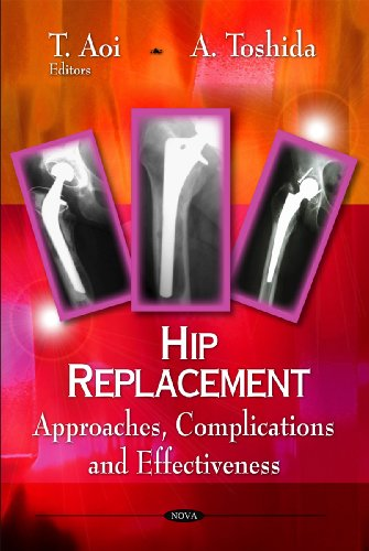 Hip Replacement: Approaches, Complications and Effectiveness