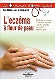 echange, troc Céline Arsenault - L'eczéma à fleur de peau