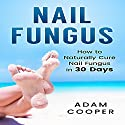 Nail Fungus Treatment: How to Naturally Cure Nail Fungus in 30 Days Audiobook by Adam Cooper Narrated by Dave Wright