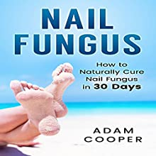 Nail Fungus Treatment: How to Naturally Cure Nail Fungus in 30 Days | Livre audio Auteur(s) : Adam Cooper Narrateur(s) : Dave Wright