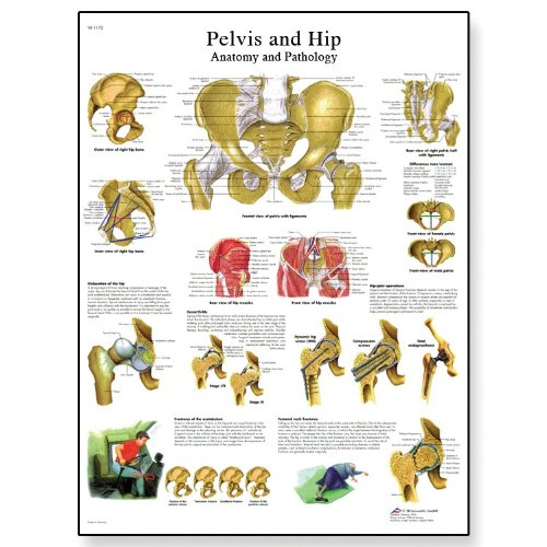 3B Scientific Glossy Paper Pelvis and Hip Anatomi and Pathology Chart - 1