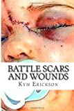 Battle Scars and Wounds: Healing The Inner Pain  Amazon.Com Rank: # 7,588,255  Click here to learn more or buy it now!