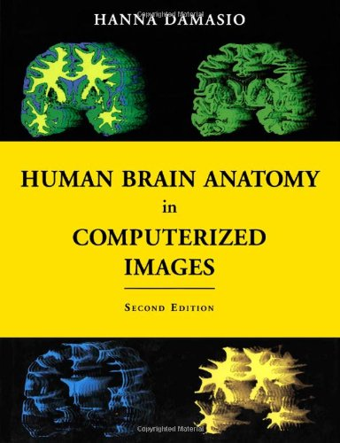 Human brain anatomy in computerized images [electronic resource]