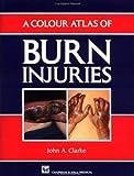 A Colour Atlas of Burn Injuries (Medical Atlas Series)