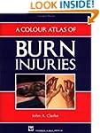 A Colour Atlas of Burn Injuries (Chap...