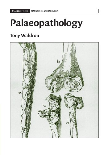 Palaeopathology (Cambridge Manuals in Archaeology)