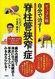 Amazon.co.jpビジュアル版 自分で治す! 脊柱管狭窄症
