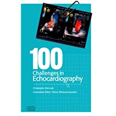 100 Challenges in Echocardiography