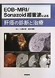 EOB-MRI/Sonazoid 超音波による肝癌の診断と治療