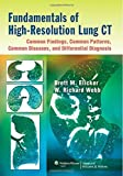Fundamentals of High-Resolution Lung CT: Common Findings, Common Patterns, Common Diseases, and Differential Diagnosis 1st by Elicker MD, Brett M, Webb MD, W. Richard (2013) Paperback