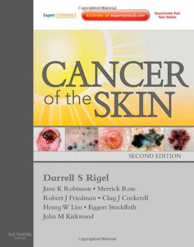 Cancer Of The Skin: Expert Consult - Online And Print, 2E