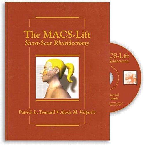 The Macs-Lift Short Scar Rhytidectomy