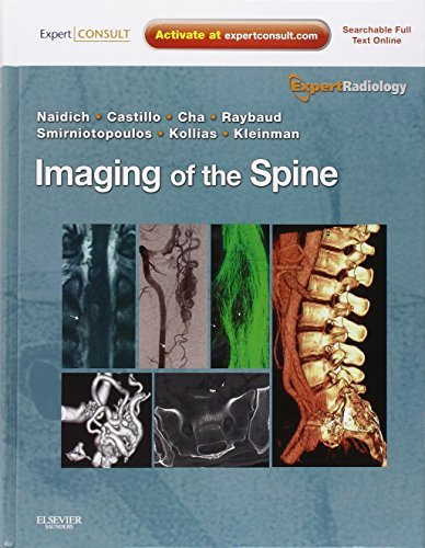 Imaging of the Spine: Expert Radiology Series, Expert Consult-Online and Print, 1e by Thomas P. Naidich (2010-09-10)