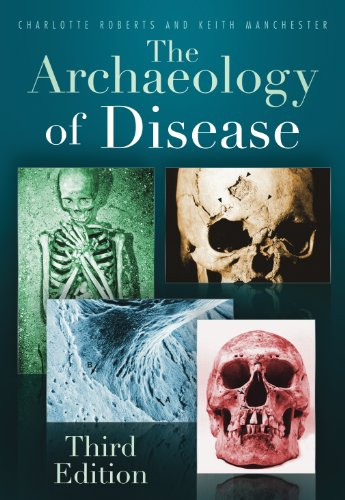 Charlotte A Roberts - The Archaeology of Disease
