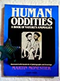 Human Oddities: A Book of Natures Anomalies