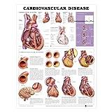 Cardiovascular Disease Poster