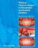 img - for Practical Osseous Surgery in Periodontics and Implant Dentistry by Dibart, Serge, Dibart, Jean-Pierre (2011) Hardcover book / textbook / text book