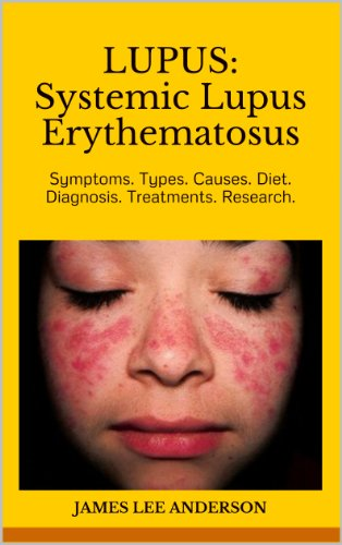 LUPUS:  Systemic Lupus Erythematosus: Symptoms. Types. Causes. Diet.  Diagnosis. Treatments. Research.