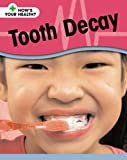 Tooth Decay (How