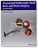Transnasal Endoscopic Skull Base and Brain Surgery: Tips and Pearls