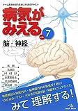 病気がみえる〈vol.7〉脳・神経