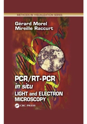 Pcr/Rt- Pcr In Situ: Light And Electron Microscopy (Methods In Visualization)
