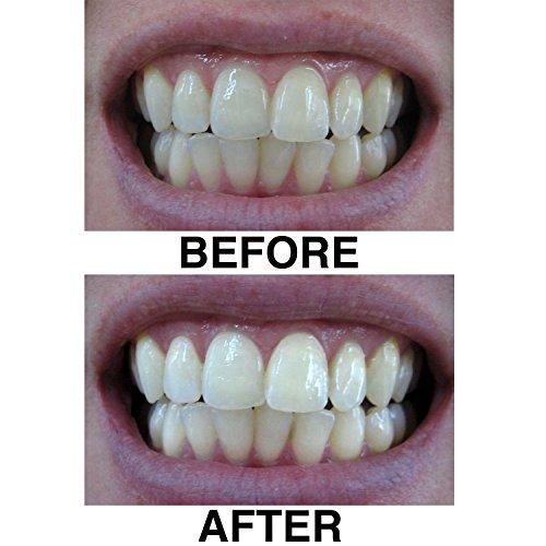 how to make homemade charcoal teeth whitener
