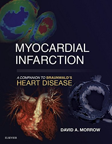 Buy Myocardial Now!