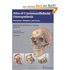 atlas of craniomaxillofacial osteosynthesis Härle f, champy m, terry b atlas of craniomaxillofacial osteosynthesis new york, ny: thieme 1999:32-33 4 medical journals and publishing melanoma.
