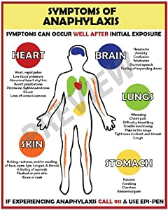 what are the symptoms of anaphylaxis